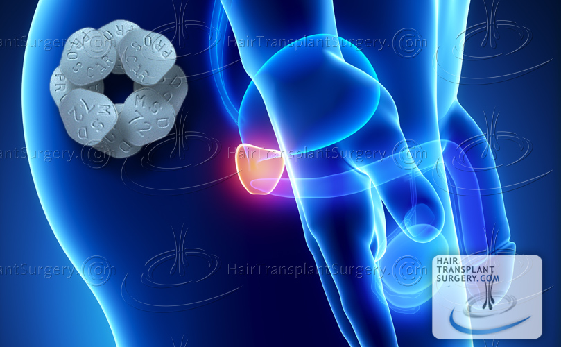 Propecia prostate cancer